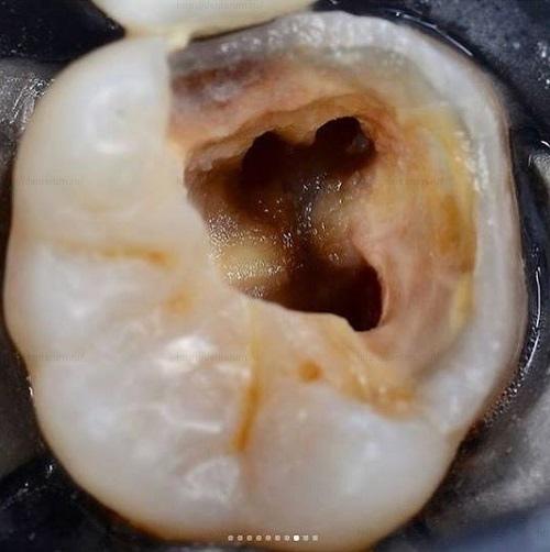 Каналы жевательного зуба полость в зубе