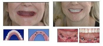 счастье после посещения стоматолога в Самаре