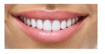 улыбка после стоматолога в Самаре