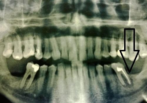 обширная гранулема на некачественно вылеченном зубе