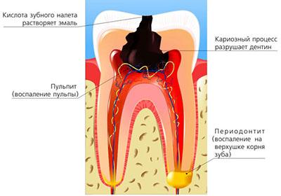 процесс развития периодонтита- воспаления околоверхушечных тканей фото